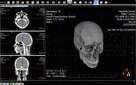 Bildschirmabzug von LEADTOOLS Medical Imaging Suite